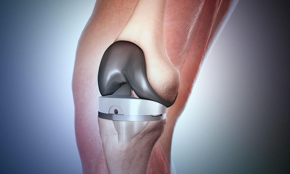 Dizlere uygulanan iki türlü protez seçeneği bulunuyor. Hastanın şikayeti ve yapısına uygun diz protezi tercih ediliyor. İki diz protezi de tüm dünyada yaygın olarak kullanılan protez cerrahi yöntemlerinden bir tanesidir. Total protez ve minimal invazif diz protezinde kullanılan yöntemlerdir.