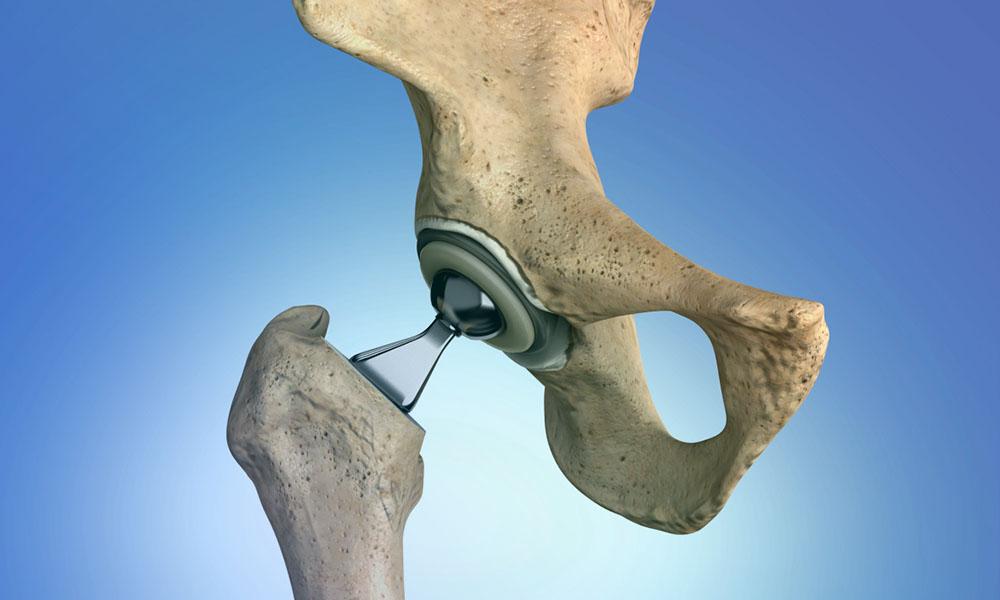 Kişinin vücuduna kısa bir sürede uyum sağlayan protezler insan hayatını kolaylaştırır ve günlük hayatın akışını olumsuz yönde etkileyen hareket kısıtlılıkları ortadan kaldırır.
