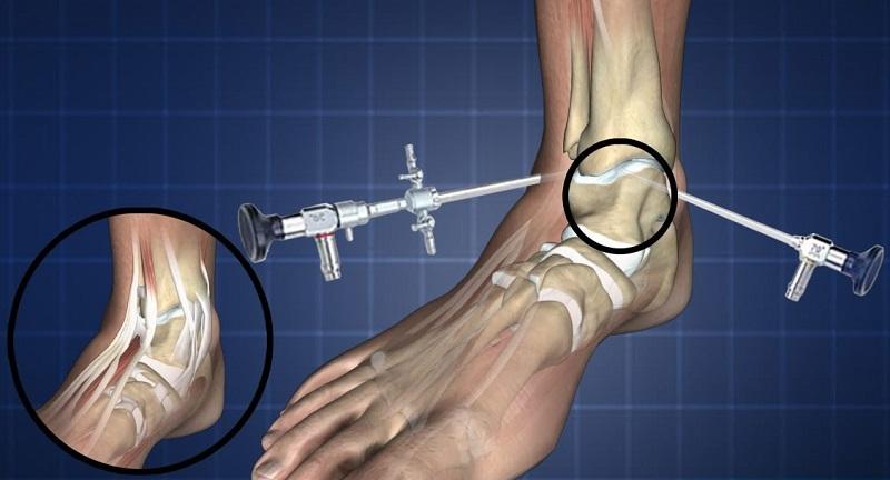 Ayak Dondurma Ameliyatı Nasıl Yapılır?