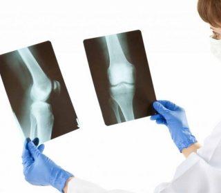 Ortopedi Nedir, Hangi Hastalıklara Bakar?