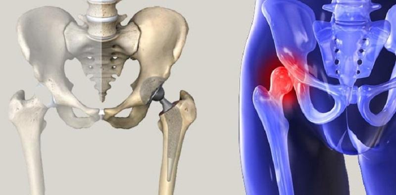 Protez Cerrahisi Nasıl Yapılır?