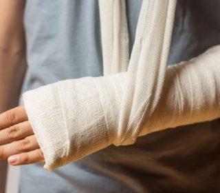 Kemik Kırıkları ve Tedavisi Nasıl Yapılır?