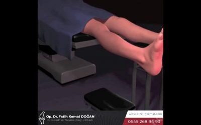 Boy Uzatma Ameliyatı | Ekstremite Uzatma Cerrahisi [Video]